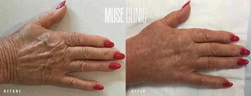 Immediately after hand rejuvenation