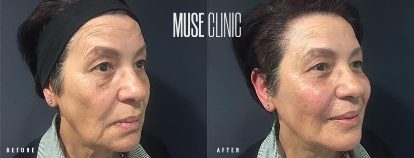 Non-Surgical Liquid Facelift