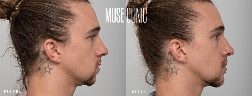 Recessed chin correction