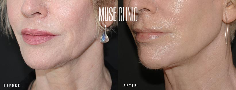 Ultherapy skin tightening lower face and jawline