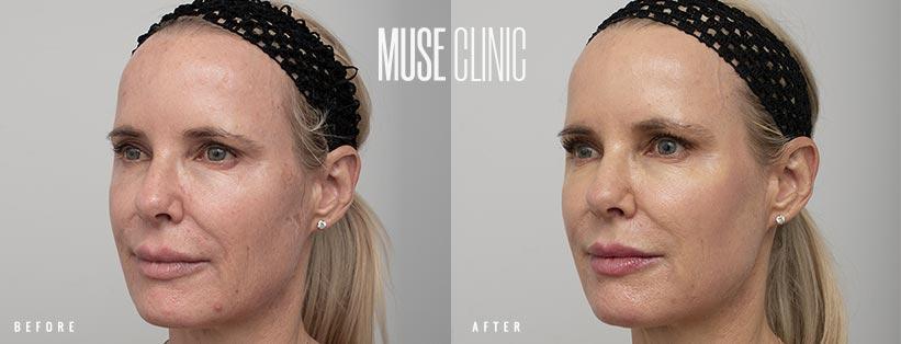 Full face resurfacing