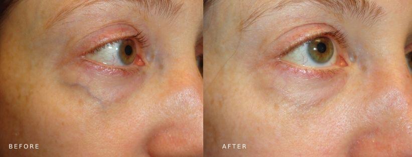 ClearV laser vein removal
