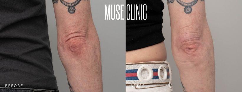 Elbow skin tightening