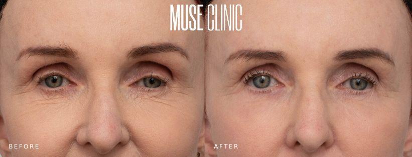 Under eye resurfacing