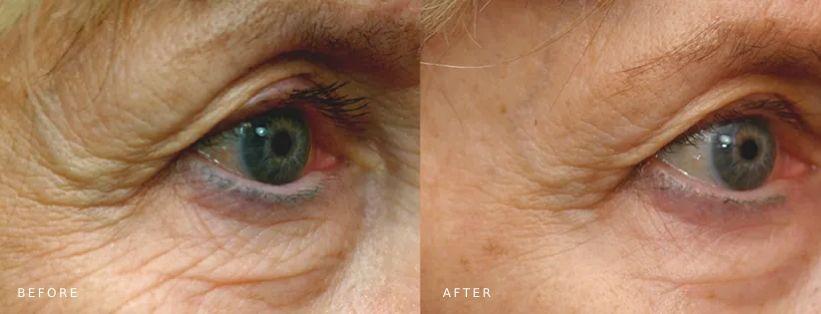 Pelleve under eye skin tightening