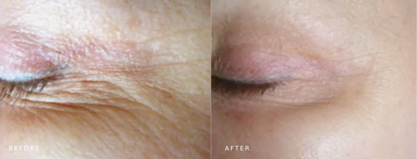 Pelleve skin tightening crowsfeet