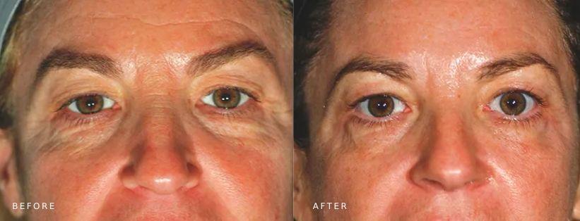 Pelleve Skin tightening