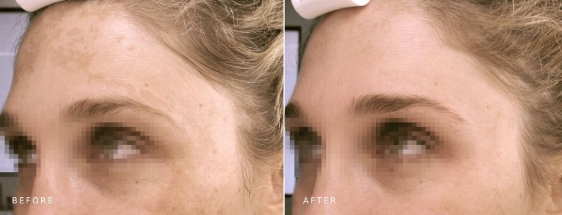 Ultraceuticals Brightening Accelerator Mask (6 mths)
