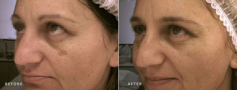 Ultraceuticals Brightening Accelerator Mask (14 weeks post)