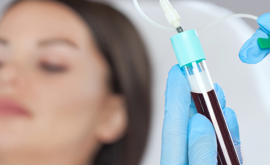 PRP Platelet Rich Plasma Chatswood