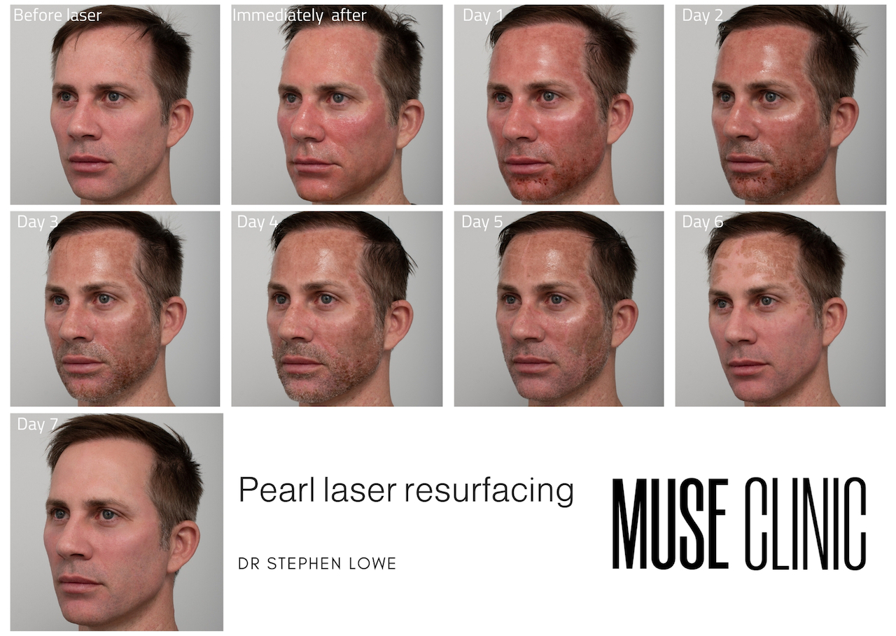 Laser resurfacing day by day