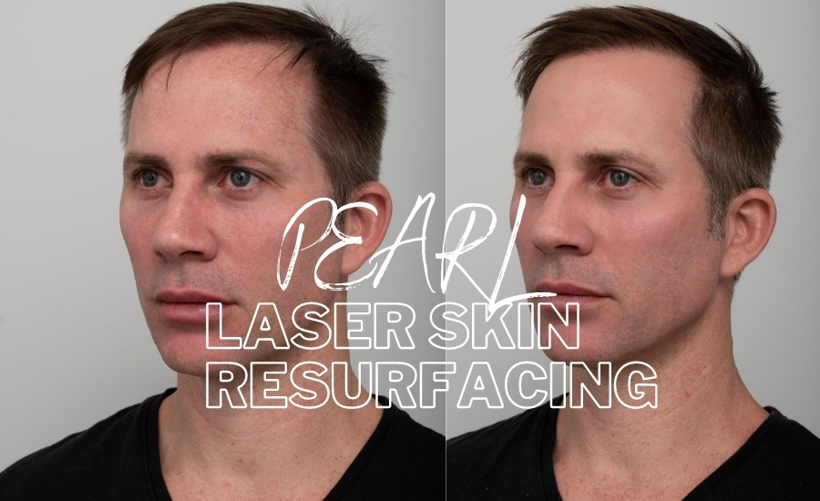Before and after Pearl Laser Skin Resurfacing