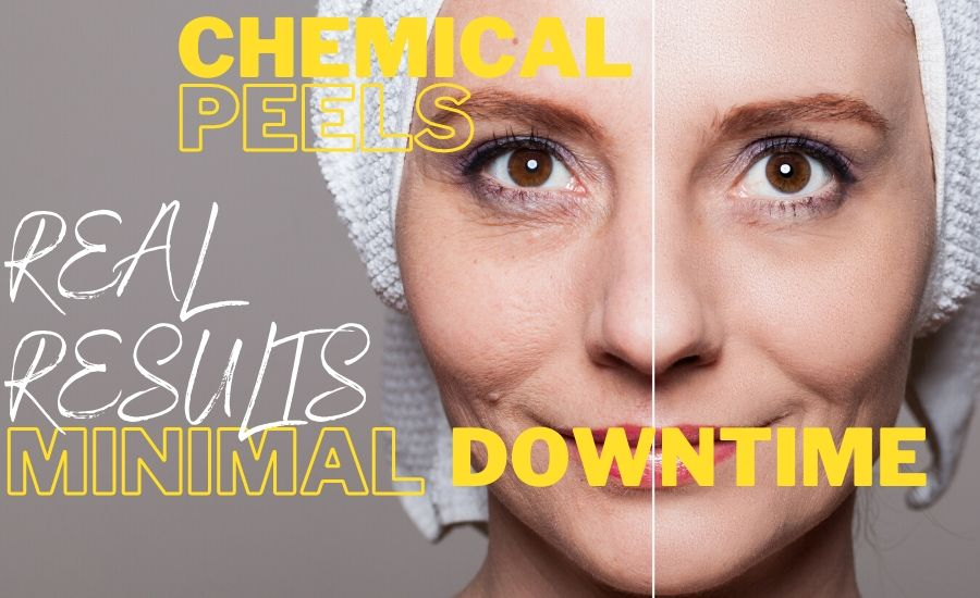 Chemical Peels MUSE Clinic