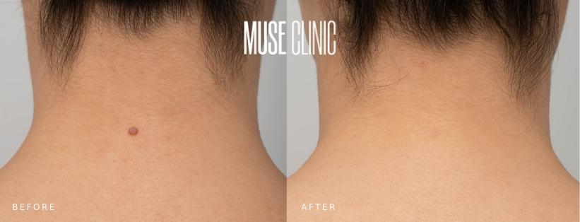 No Scar Mole Removal